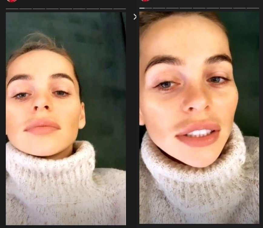 Анна Хилькевич показалась без макияжа и наращенных ресниц