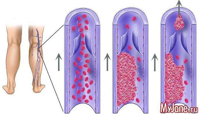 Варикоз і тромбофлебіт: не лише «косметична» проблема...