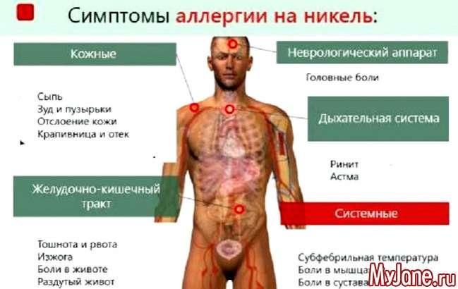 Алергія на метал: не тільки косметична проблема...