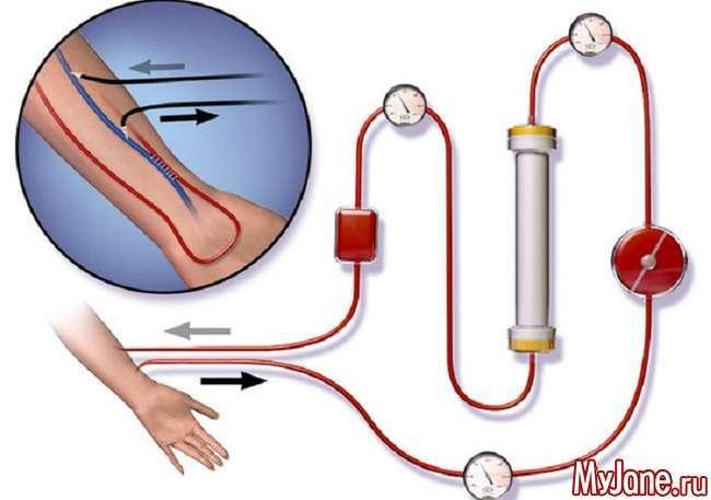 Гемодіаліз: неминуча альтернатива трансплантації
